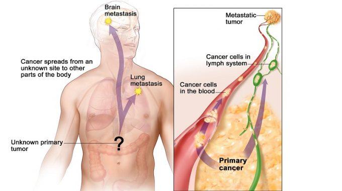 Carcinoma là gì?